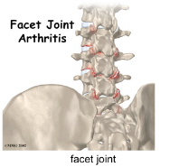 Facet Joint